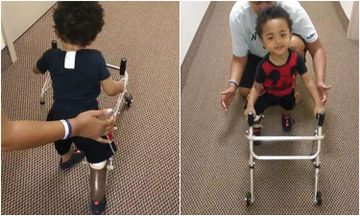 Adorable 2-Year-Old Learns To Walk On Prosthetics (VIDEO)